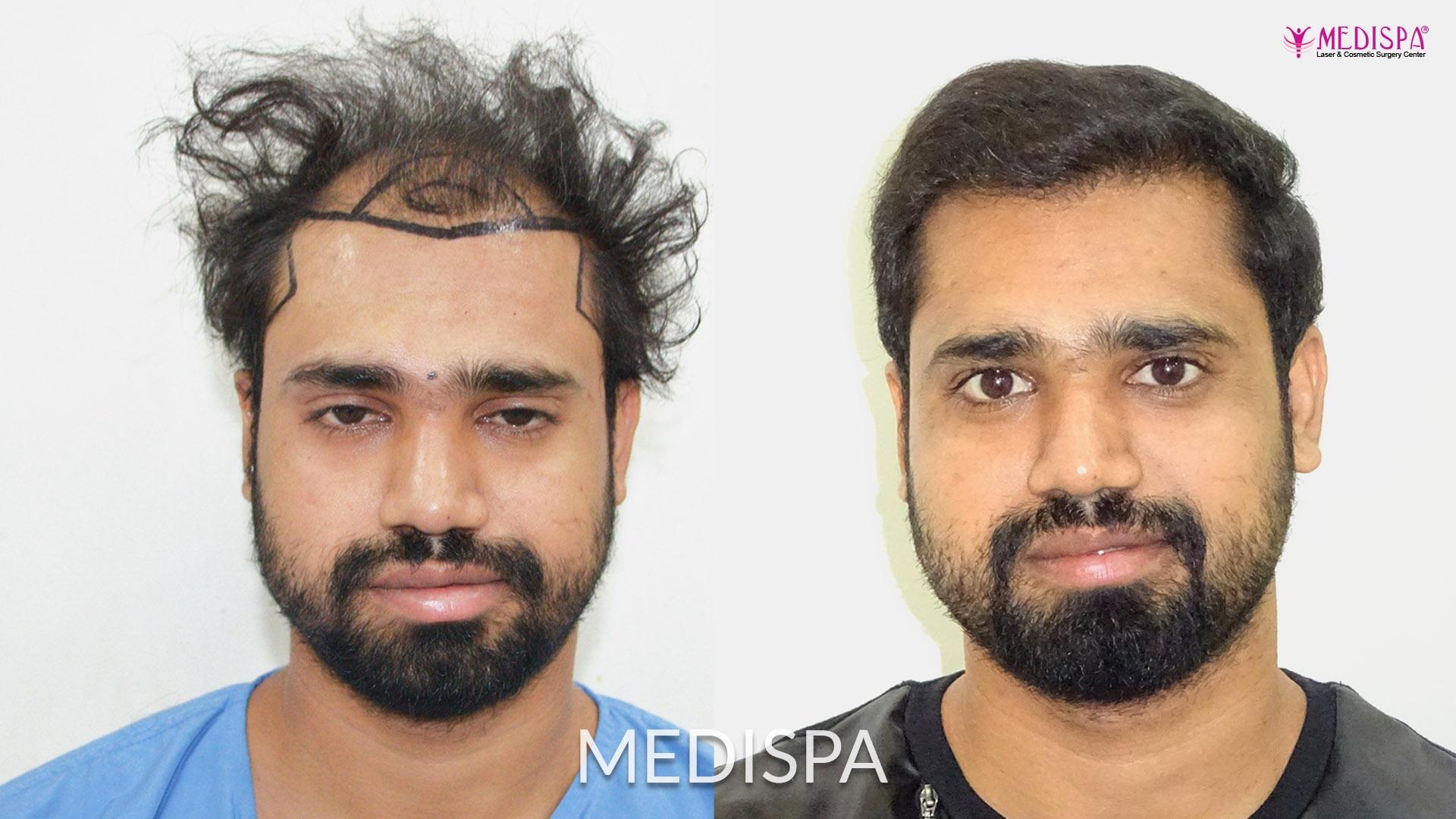 Facial hair growth retardation