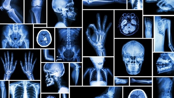 How long is a radiology program? - Quora