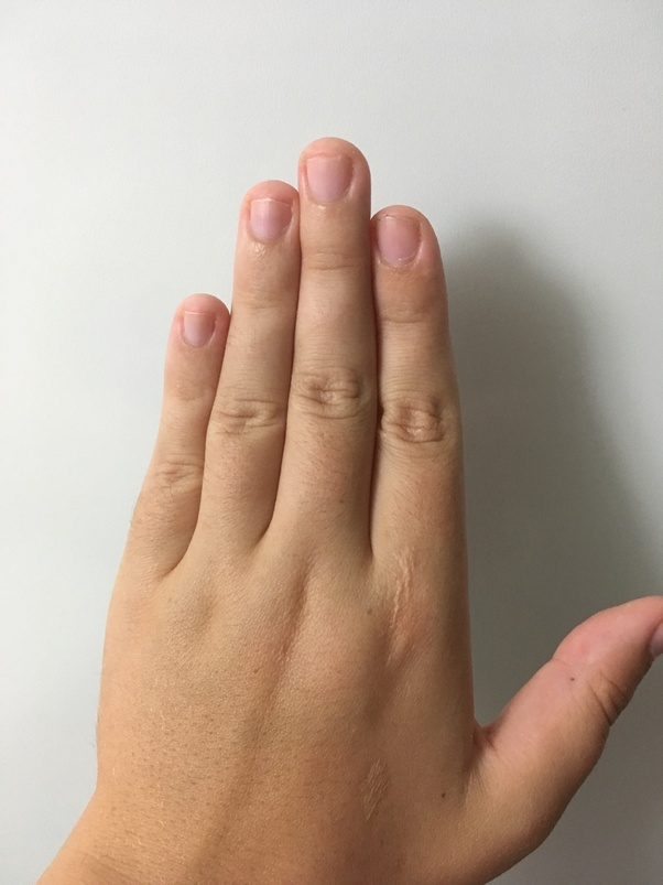 If You Re Born Female And Your Ring Finger Is Longer Than Your Index Finger And If You Re Male And It S The Other Way Around Can We See A Picture Quora