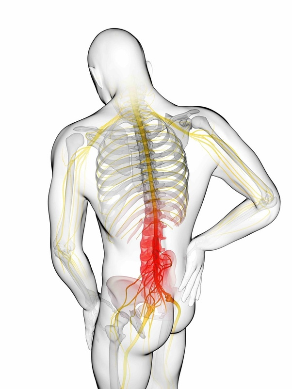 What Is Sciatica Pain Quora