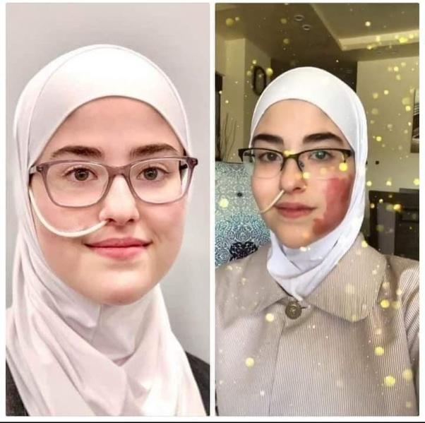رحلة الصبر لإسراء شابة أردنية مصابة بمرض نادر