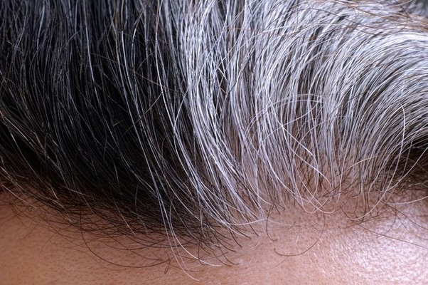 How To Get Rid Of Stray Gray Hairs Quora
