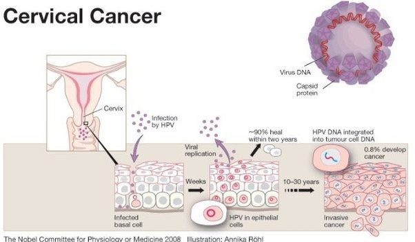 Hpv sexually transmitted disease wiki