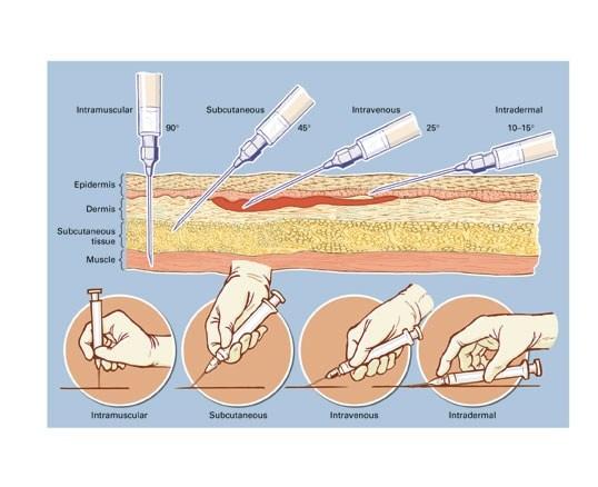 a practical guide to dermal filler procedures pdf