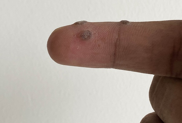 warts on hands recurring