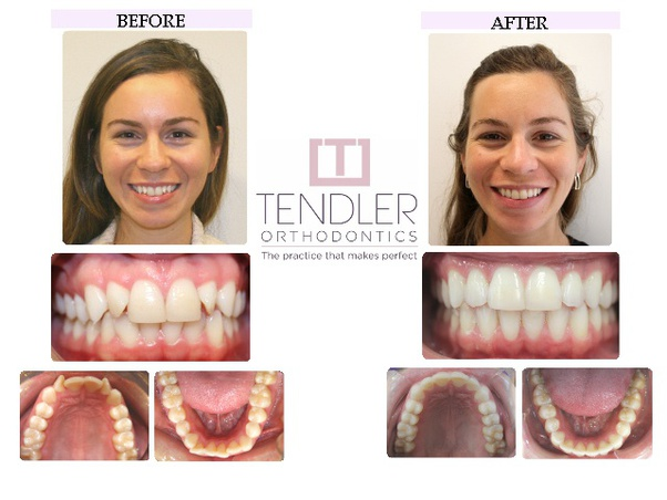 It is said braces can change the shape of your face. Do ...