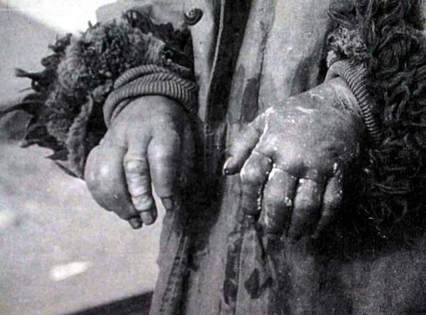 o que e ulceração coleta frio