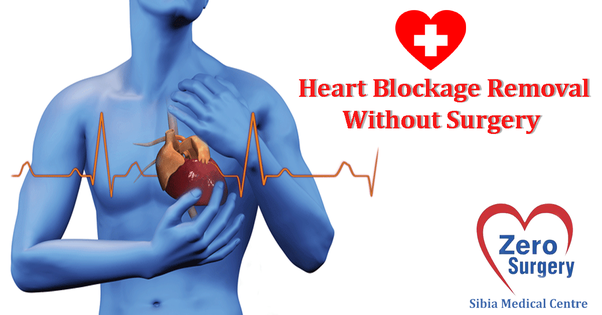 Is There A Natural Way To Remove Heart Blockages Without Surgery