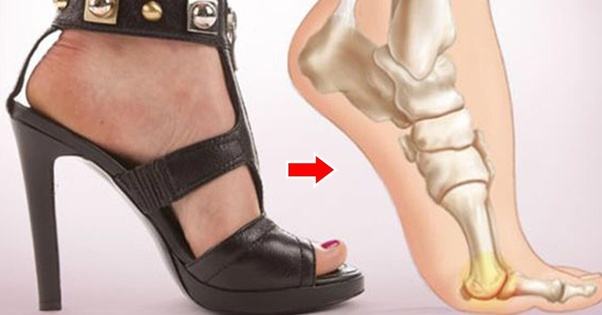 Would wearing high heels every day damage your feet? Quora