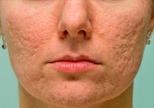 What are the best creams to remove acne scars? - Quora