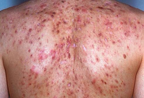 How To Get Rid Of My Back Acne And My Chest Acne Quora