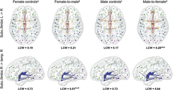from Richard transsexual brain development