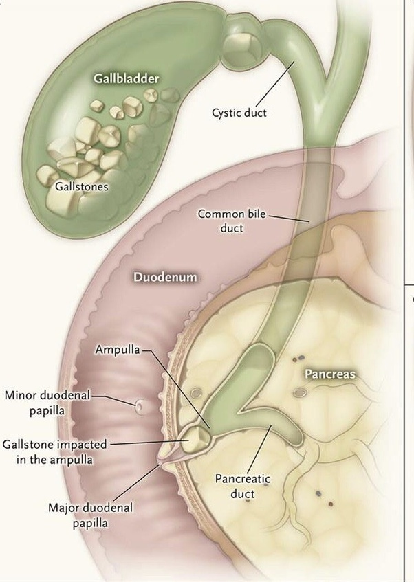 Do gallstones cause leukocytosis quora the usual presentation of gallstones is infection obstruction spectrum there is more often than not an overlap leucocytosis ie increased white blood ccuart Images