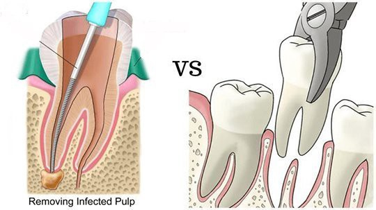 What Is Better Root Canal Or A Tooth Extraction Quora