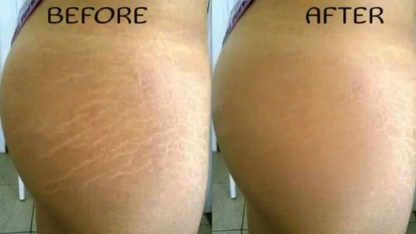 There Are Two Common Types Of Lasers Often Used In Stretch Mark Laser Removal Fractional Therapy And Pulsed Dye The Type Will