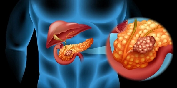 What are the symptoms and signs of pancreatic cancer? - Quora