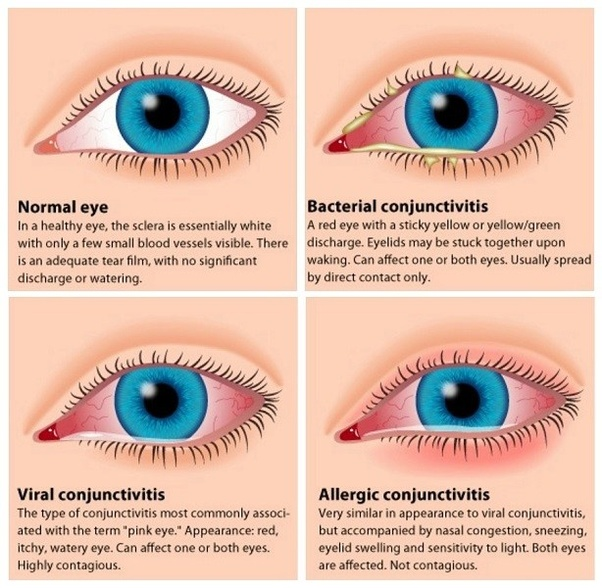 755f44e3d79 Dry eyes or even Blepharitis can cause itchy eyes. Blepharitis