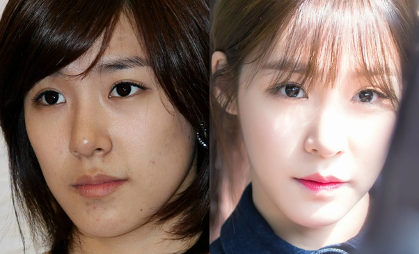 Is There Any Kpop Idol Who Has Acne Problems Or Had Suffered From It Q Kpopfans Quora