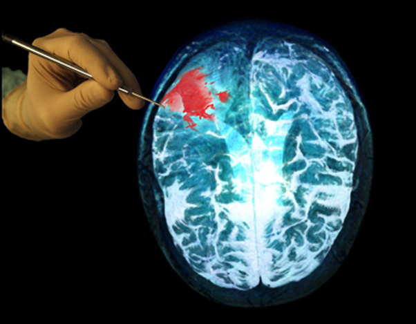 What are some obvious symptoms that point to brain cancer