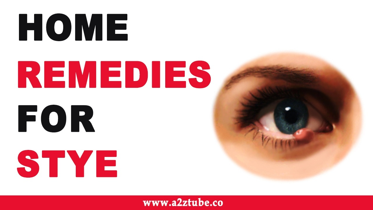 What Are Some Home Remedies For Styes Quora
