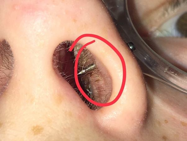 What Should A 1 Week Old Nose Piercing Look Like Quora