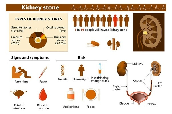 Kidney Stone Home Remedy India