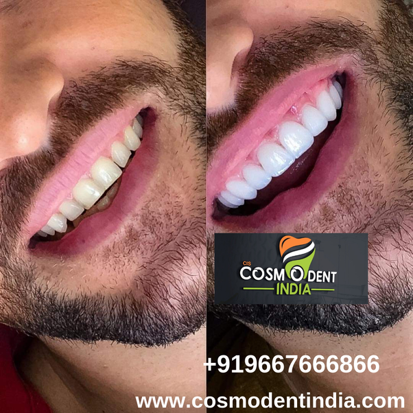 Where Is The Best Place To Get Dental Implants In India Quora
