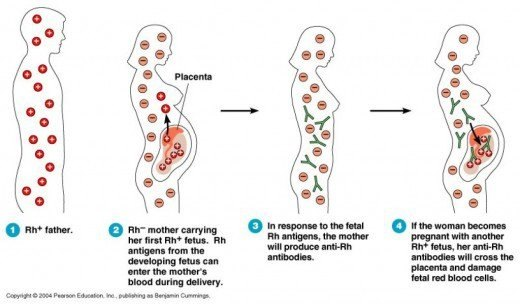 Can a man with blood group B Rh D Negative marry a woman with blood group O  Rh D positive? - Quora