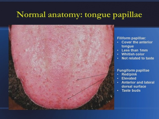 How to fix have reddish gums and white stuff appearing on my tongue ...