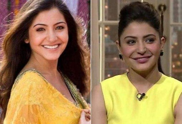 Which Bollywood actresses have undergone plastic surgery