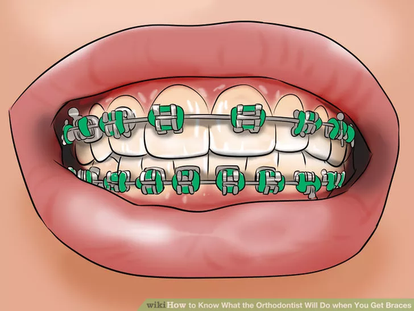 How do orthodontists put braces on quora this does not hurt although you might feel a slight pinch thats it you are done if they offer you a mirror to admire yourself take it solutioingenieria Gallery