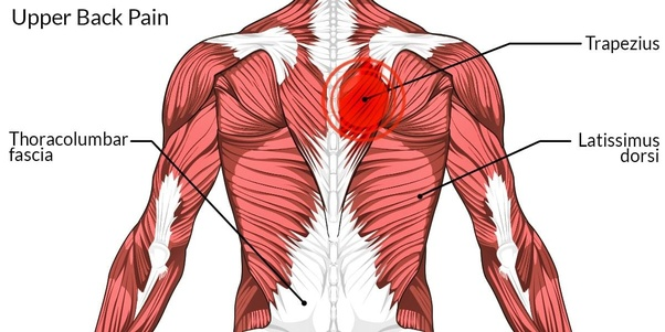 how to train when upper back pain