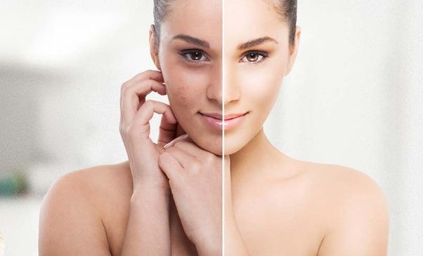 Which Is The Best Dermatologist For Curing Skin Pigmentation With