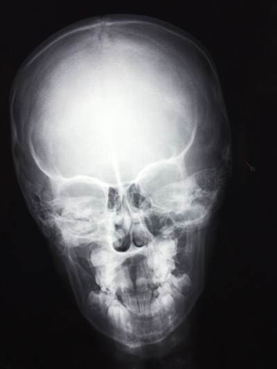 What will happen if the entire CSF volume is drained ... Skull X Ray Views Merrills