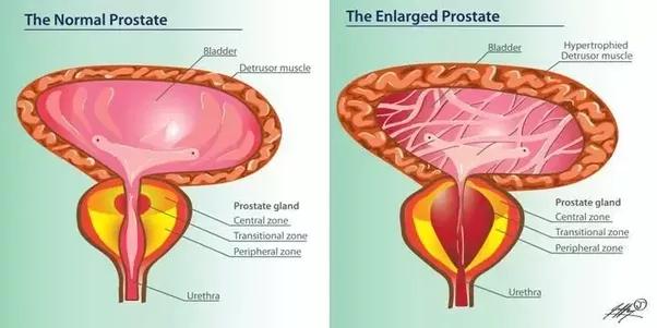 vaginal itching treatment natural