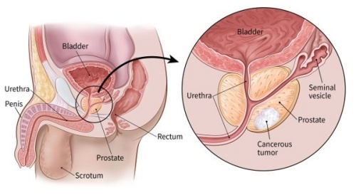 Prostate and sperm