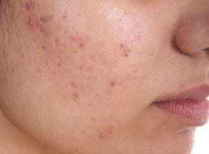 Does the laser treatment work permanently for pigmentation