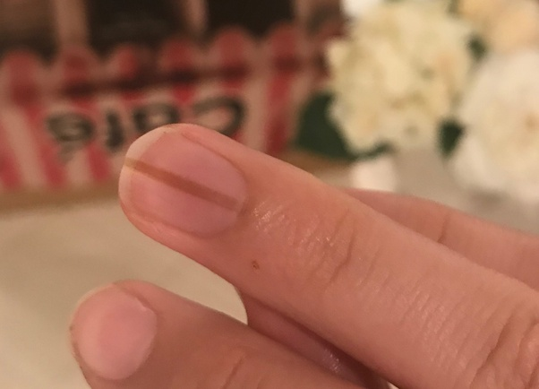 Why does a brown line appear on a fingernail? - Quora