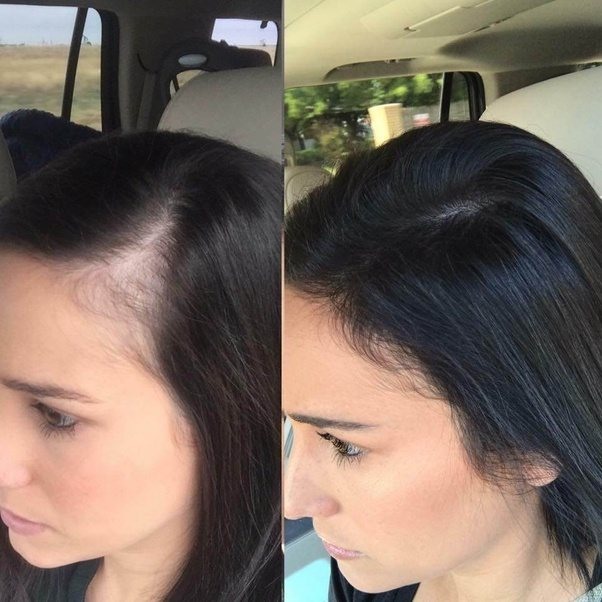 Can I Reverse Hair Loss And Actually Regrow Hair On A