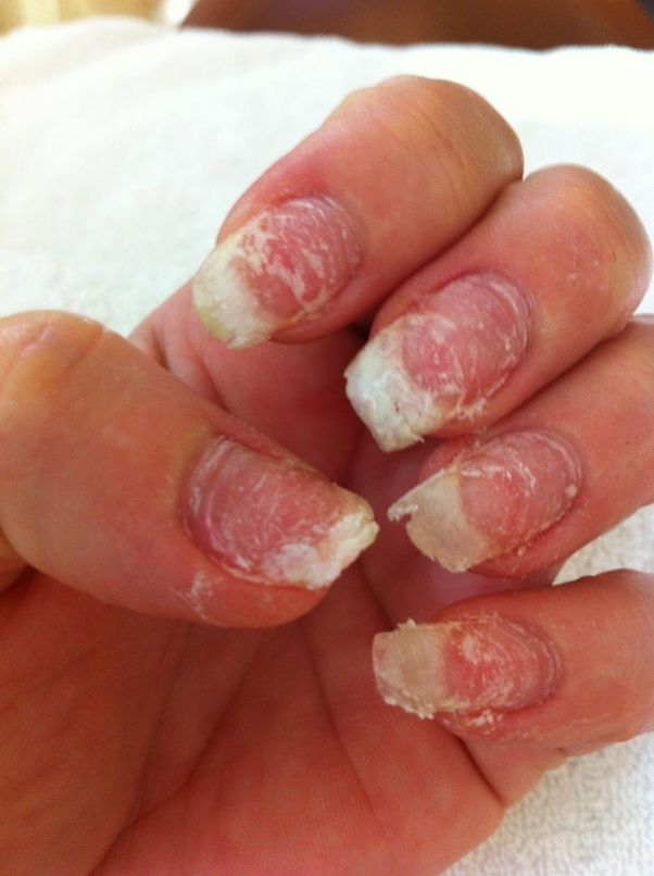 What should you know before getting acrylic nails? - Quora
