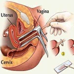 Can a doctor feel a fibroid by doing a pap smear quora doing a pap smear solutioingenieria
