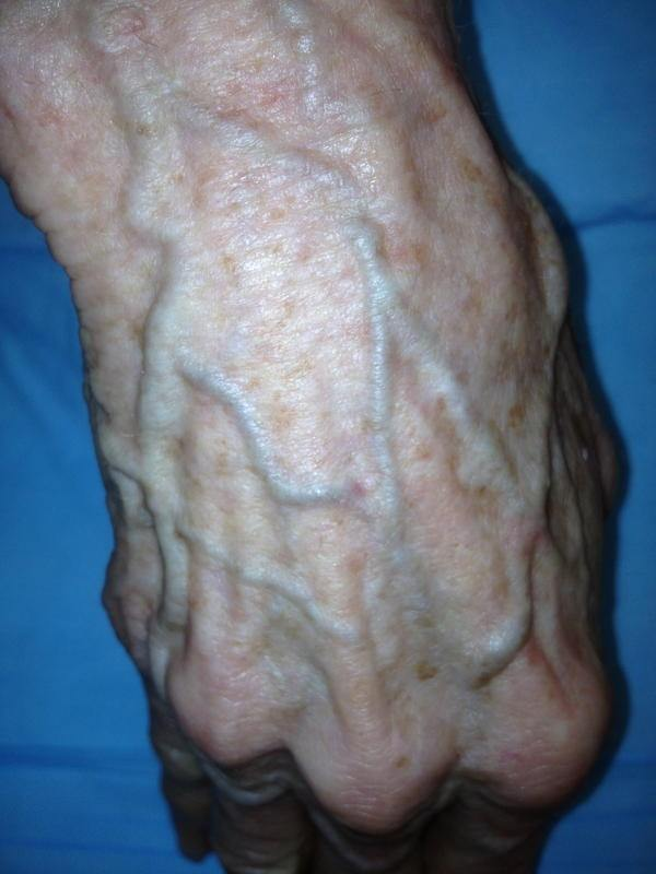 Varicose veins of the penis