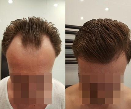What Is The Price Of A Hair Transplant Quora
