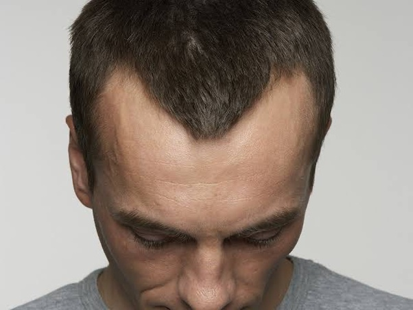 Cure hairline receding natural for How to