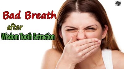 Why does wisdom teeth removal lead to bad breath? - Quora