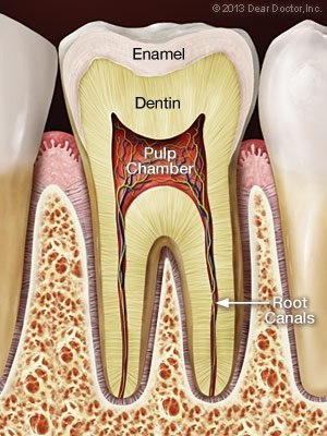 What is a root canal treatment quora solutioingenieria Images