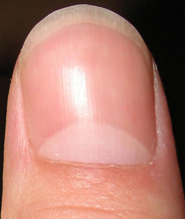 White Specks On Nail Bed