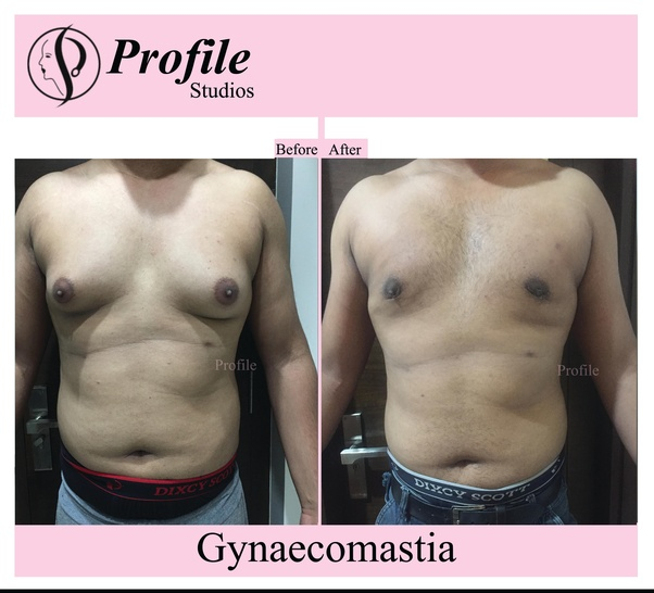Male breast reduction surgery cost in bangalore dating. types of computer network relationships dating.