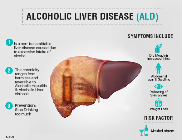 What is the best cure for alcoholic liver disease? - Quora