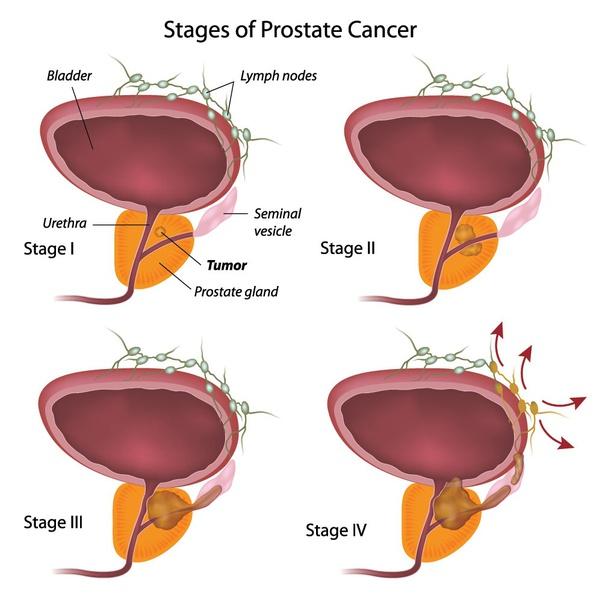 cancer ya prostate
